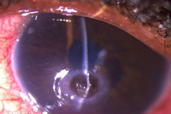 descemetocele post corneal ulcer resolution