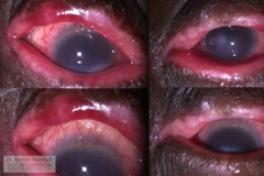 tylosis consequences of hyperachute ulcerative blepharitis, F35yo avaiting for PKP