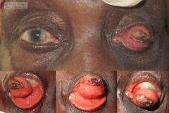 recurrent scc case presumed in old lady 8 years after primary excision of pterygium