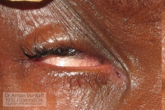 severe bilateral trachomatous trichiasis in 9yo girl with pannus