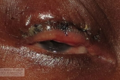 severe bilateral trachomatous trichiasis in 9yo girl with pannus - Ballen's procedure