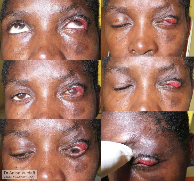 Upper lid cicatricial ectropion