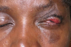 Cicatricial upper lid burn managed with skin graft
