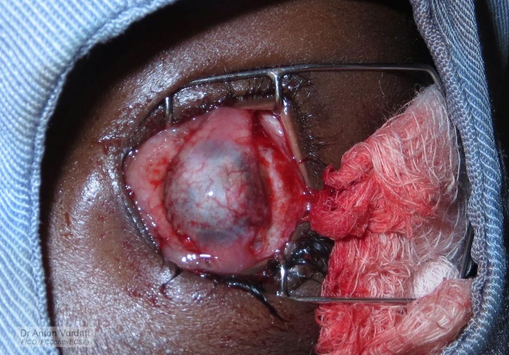 Tenonplasty