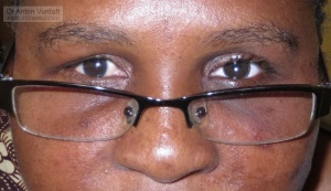 artificial eye in bilaterally blind patient