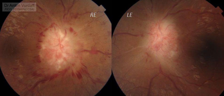 thyroid compressive optic neuropathy