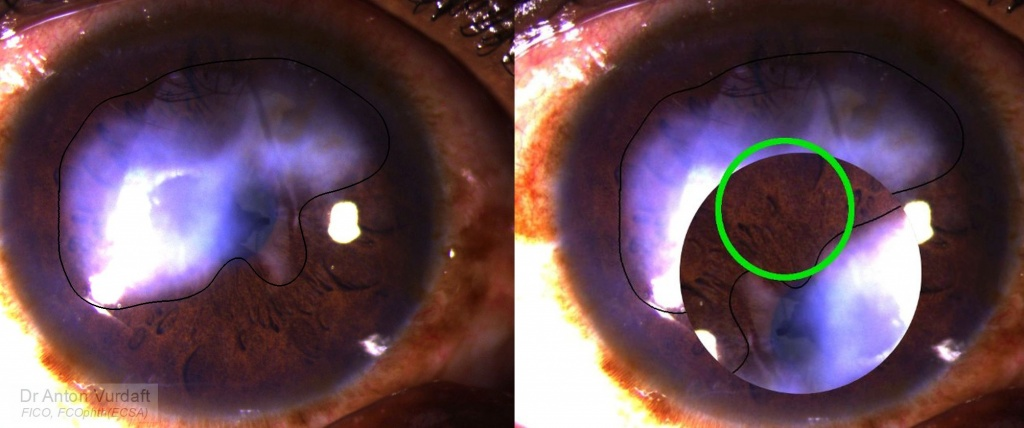 Rotational keratoplasty