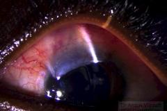 Juvenile Open Angle Glaucoma