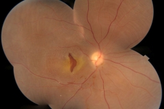 Macular tear and diffuse retinal detachment in juvenile maculoschisis