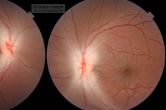 Methanol optic neuropathy
