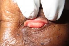 Arlt's line in trachoma