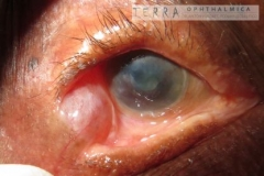 Dacryops, simple lacrimal gland cyst and corneal scars post cicatricial trachoma