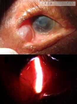 Dacryops after trachoma