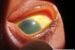 congenital corneal opacity ddx 2