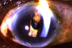 Vitreous wick syndrome after cataract extraction