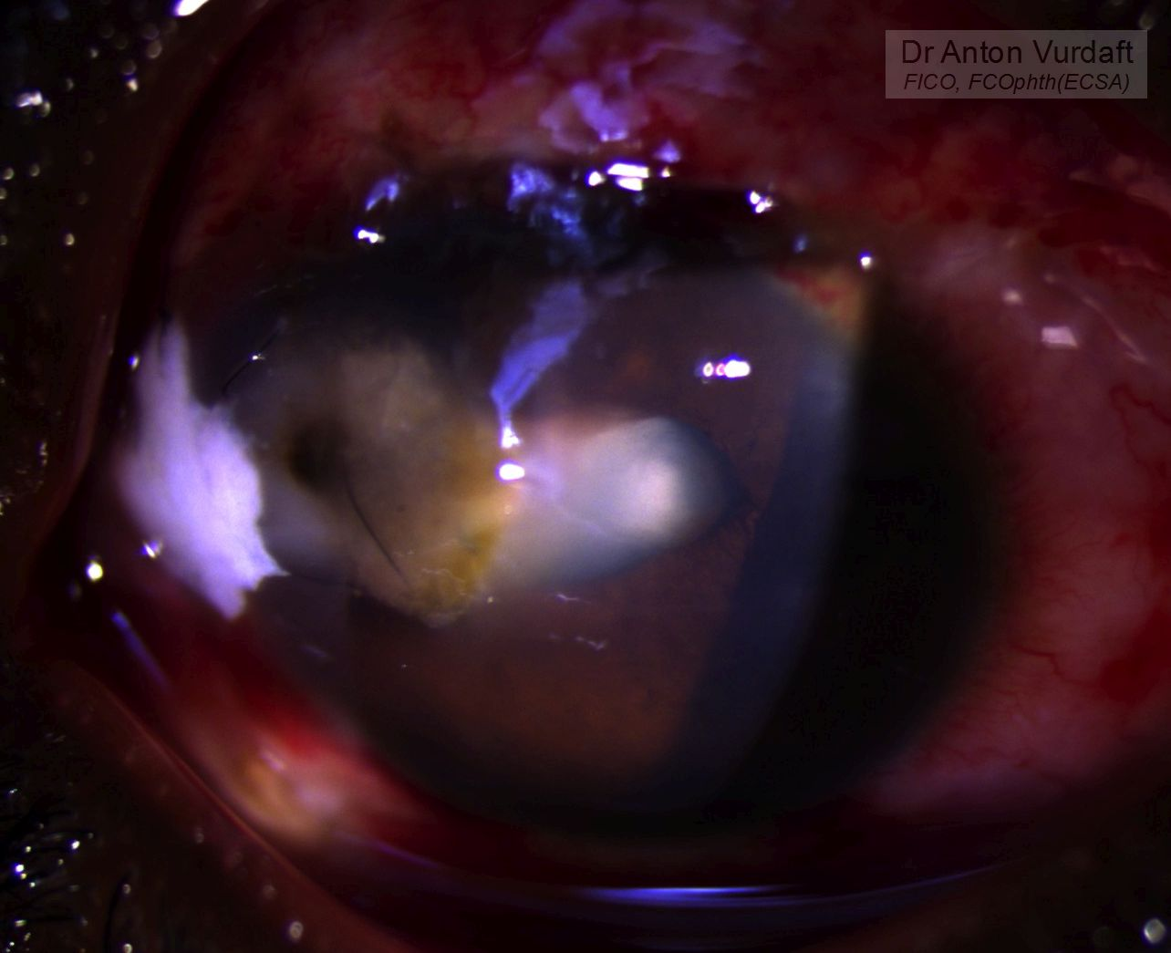 Fish-hook eye perforation - corneal scar and traumatic cataract