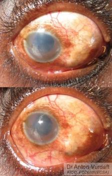 Lens extrusion
