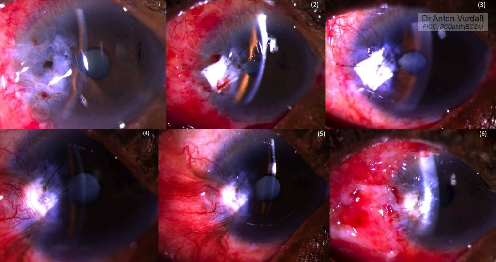 Pterygium excision caused corneal perforation.