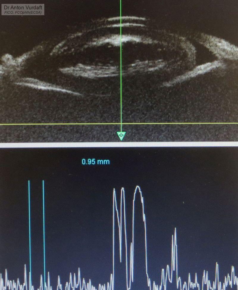 Traumatic anterior lens dislocation - UBM