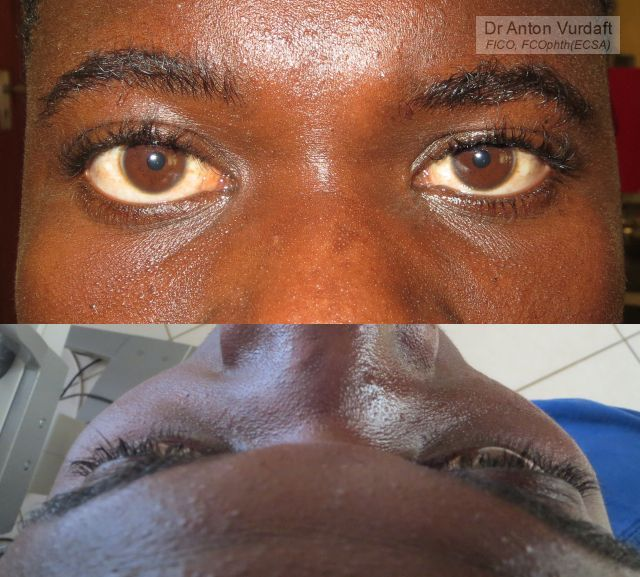 Non-traumatic enophthalmos left eye