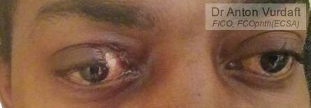 Complicated upper eyelid repair: direct closure, cantholysis, Tenzel flap