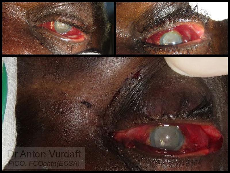 Retrobulbar hemorrhage: 1) canthotomy and lower cantholysis, 2) upper cantholysis