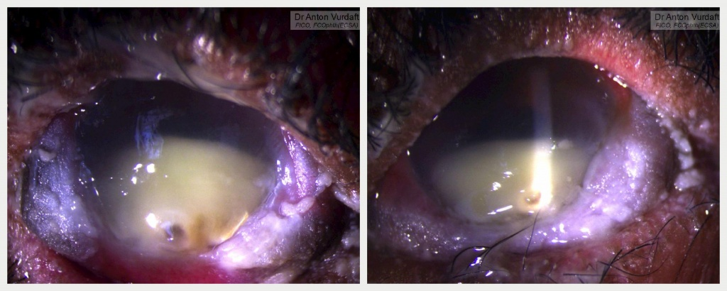 Stevens-Johnson Syndrome of the eye: severest keratoconjunctivitis sicca and bilateral keratitis with secondary infection (bilateral cornea abscess)