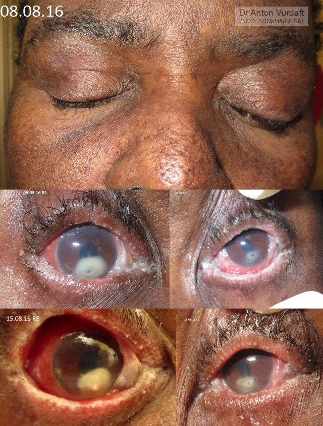 Stevens-Johnson Syndrome on HAART HIV therapy - eyes