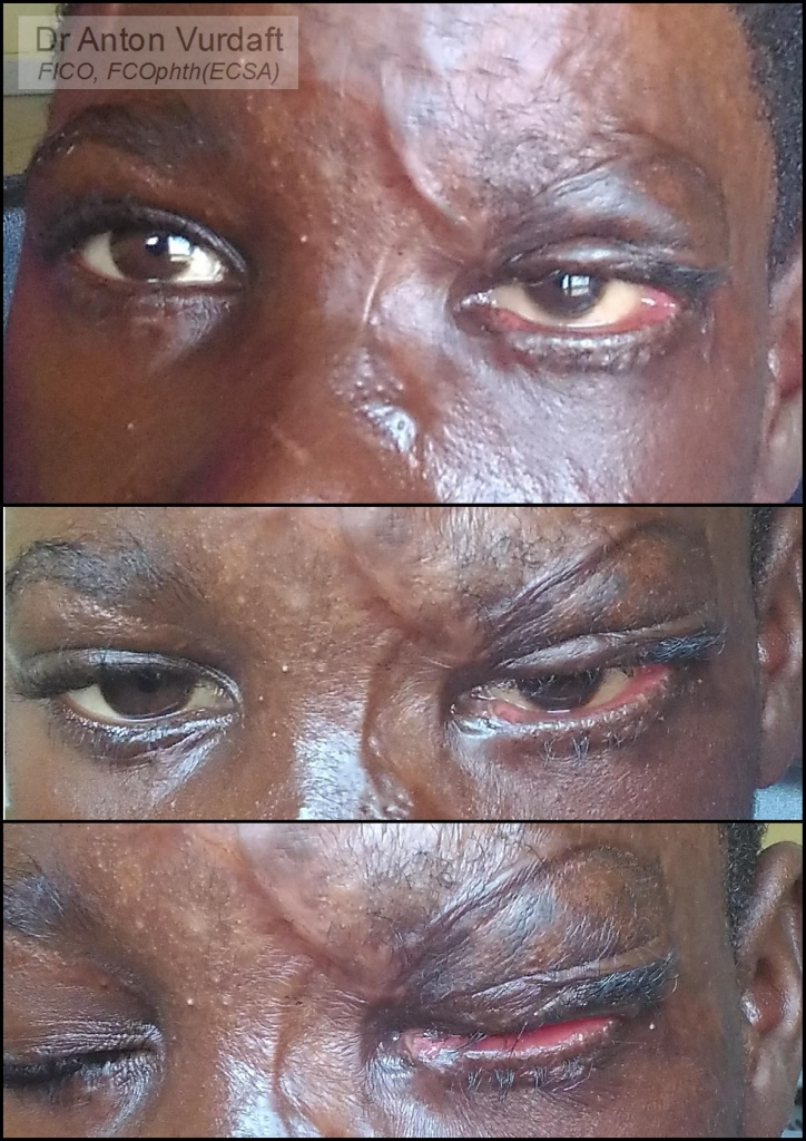 Cicatricial ectropion upper lid after skin-grafting
