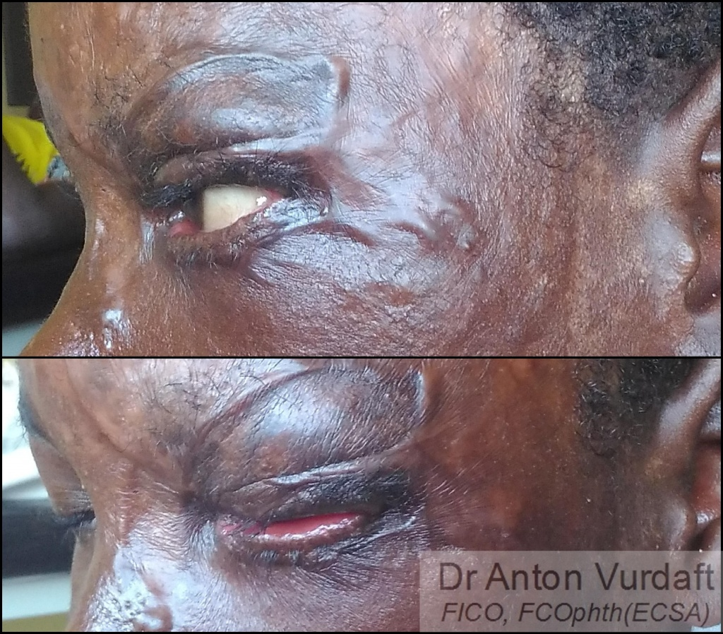 Cicatricial ectropion upper lid 2 months after skin-grafting