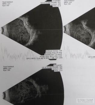 Periorbital dermoid cyst: B-scan