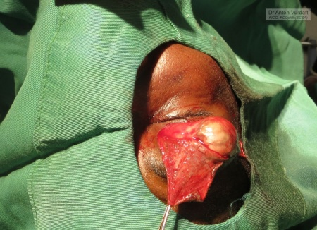 Periorbital dermoid cyst excision