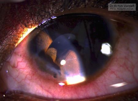 traumatic iris cyst