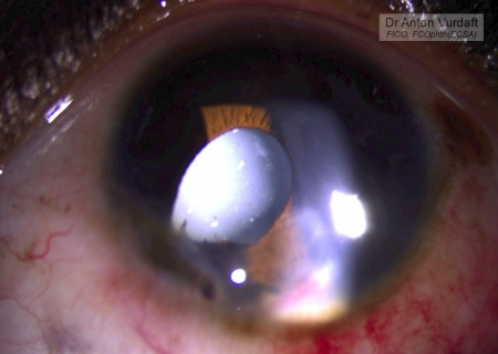 Traumatic iris cyst collapsed state 1 week after ethanol injection