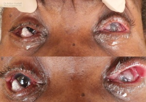 Bilateral advanced conjunctival squamous cell carcinoma