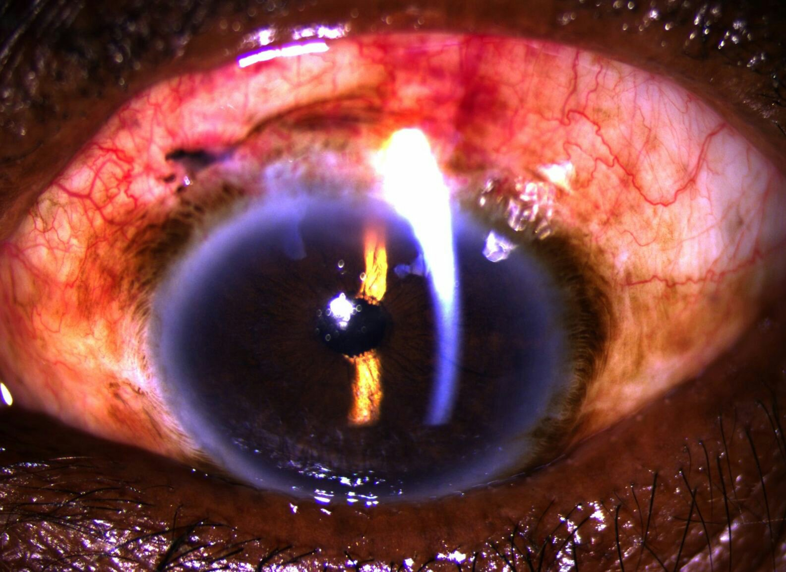 Postoperative status: SICS in Morgagni cataract