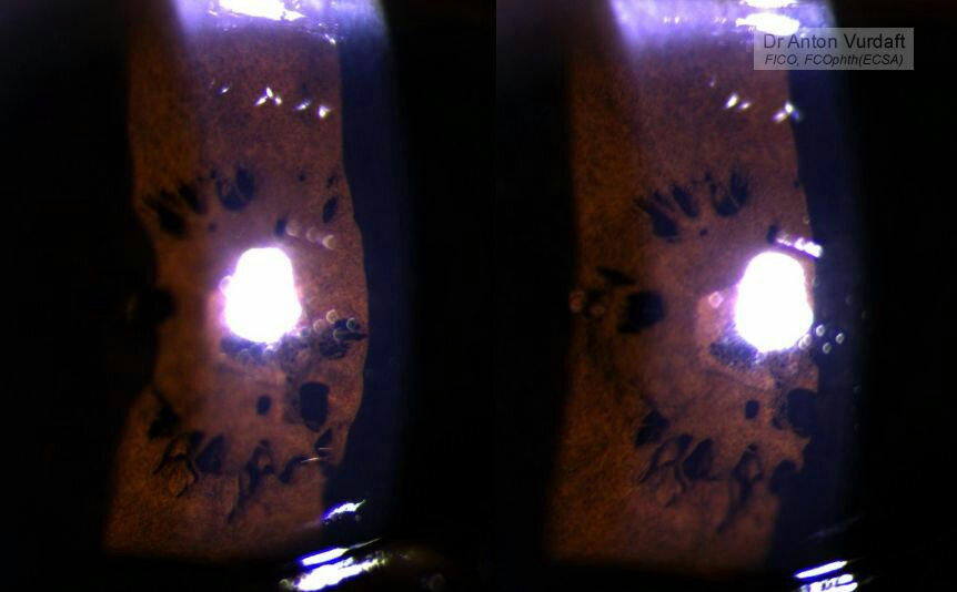 Severe persistent pupillary membrane: stereo-pair