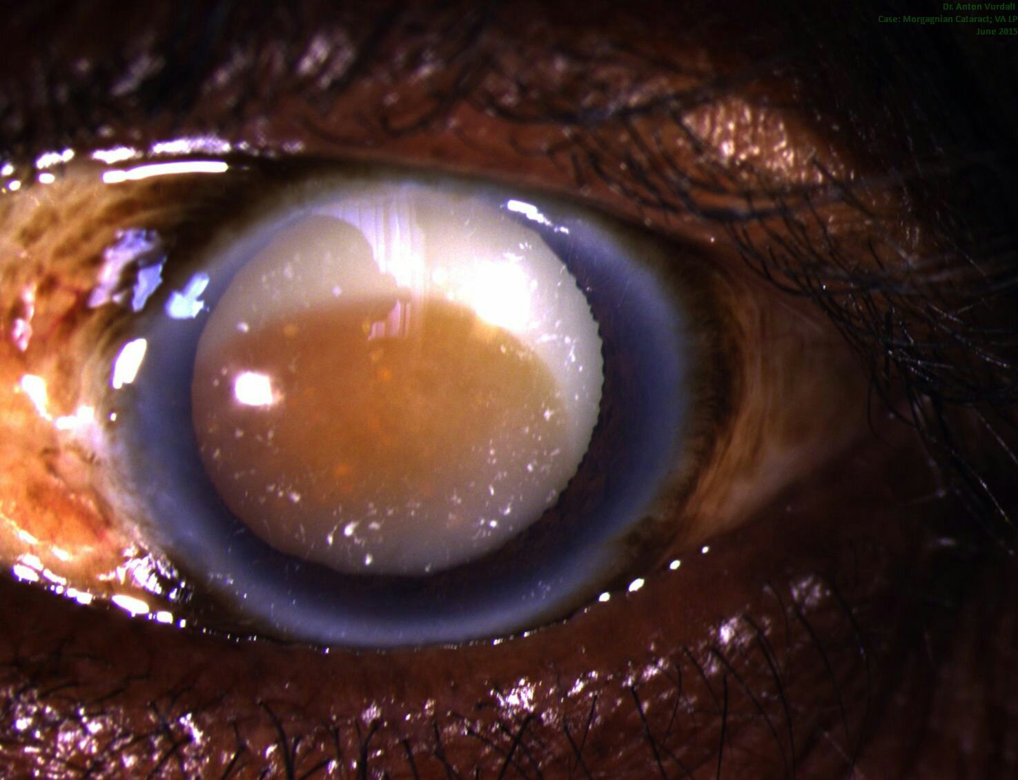 Morgagni cataract