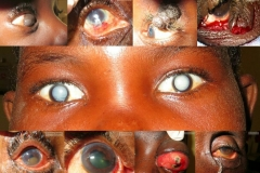 African ophthalmology cases mix