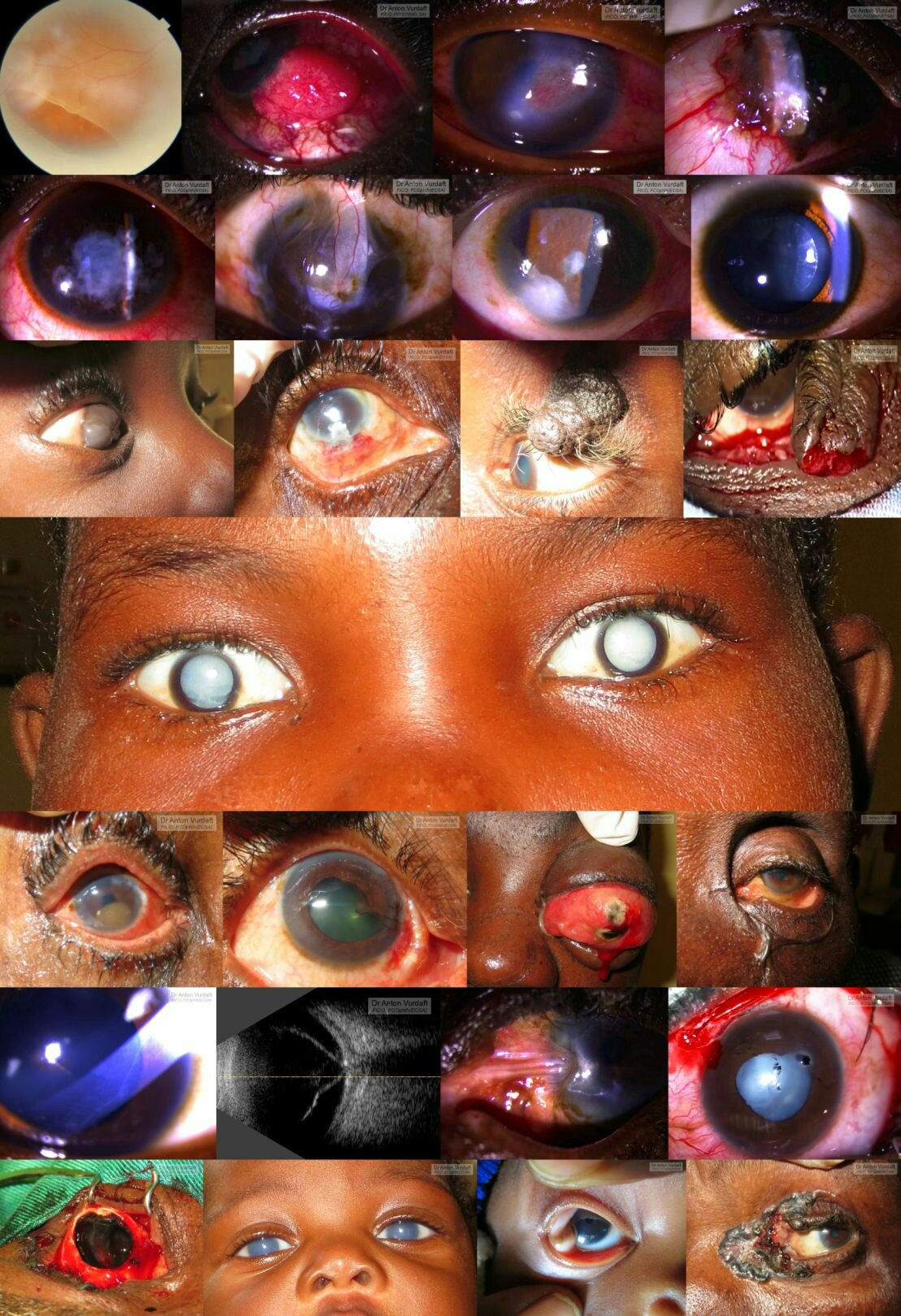 African tropical ophthalmology cases mix