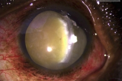 Traumatic anterior lens dislocation