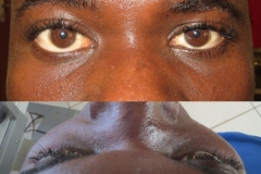 Non-traumatic enophthalmos left eye