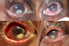 Stevens-Johnson Syndrome of the Eye